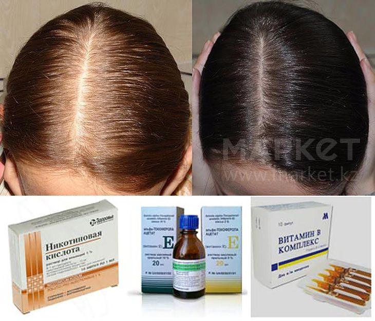 Витамины и минералы и микроэлементы от выпадения волос