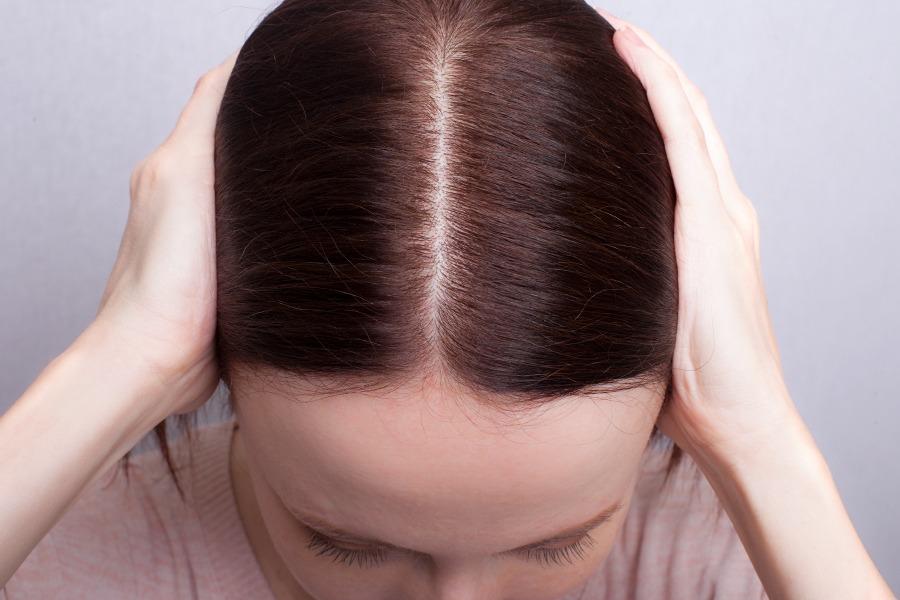 Выпадают волосы у женщины сильно почему причины
