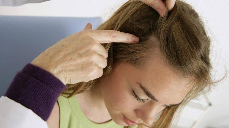 Грибок головы и выпадение волос