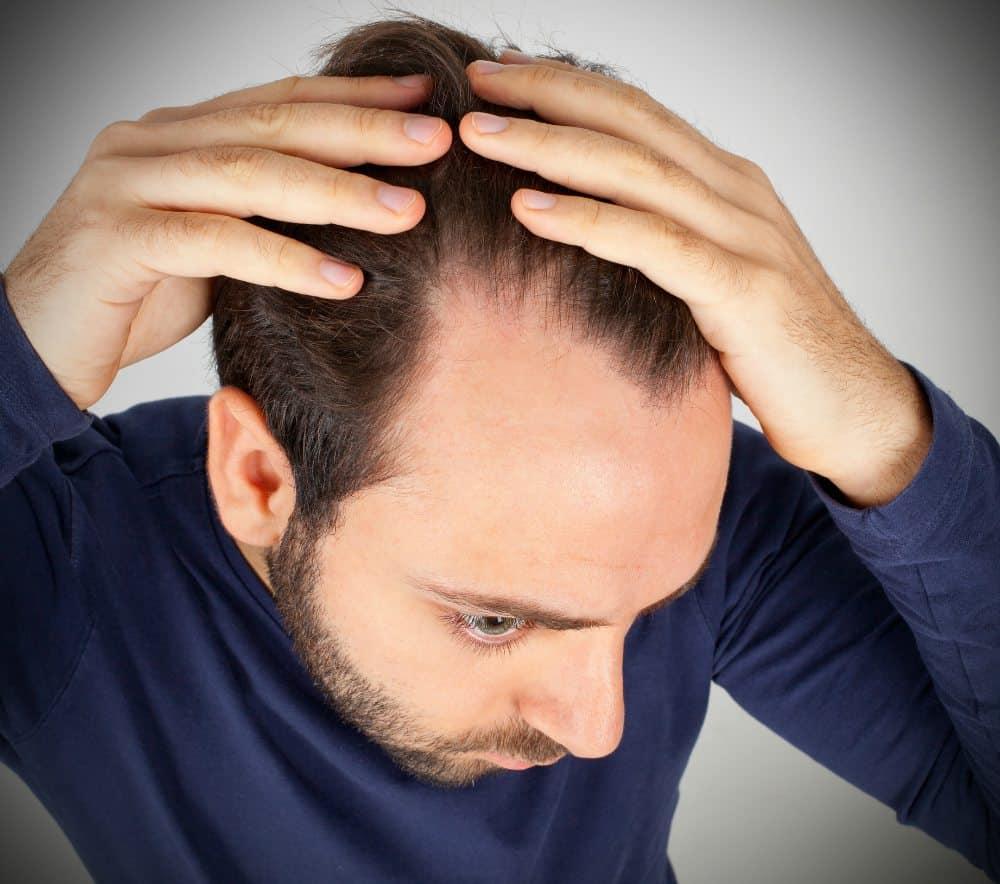 Зрелая линия роста волос у мужчин