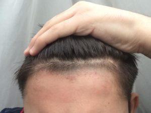 Волосы на лбу