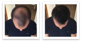 Имбирь от выпадения волос до и после фото