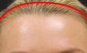 линии роста волос