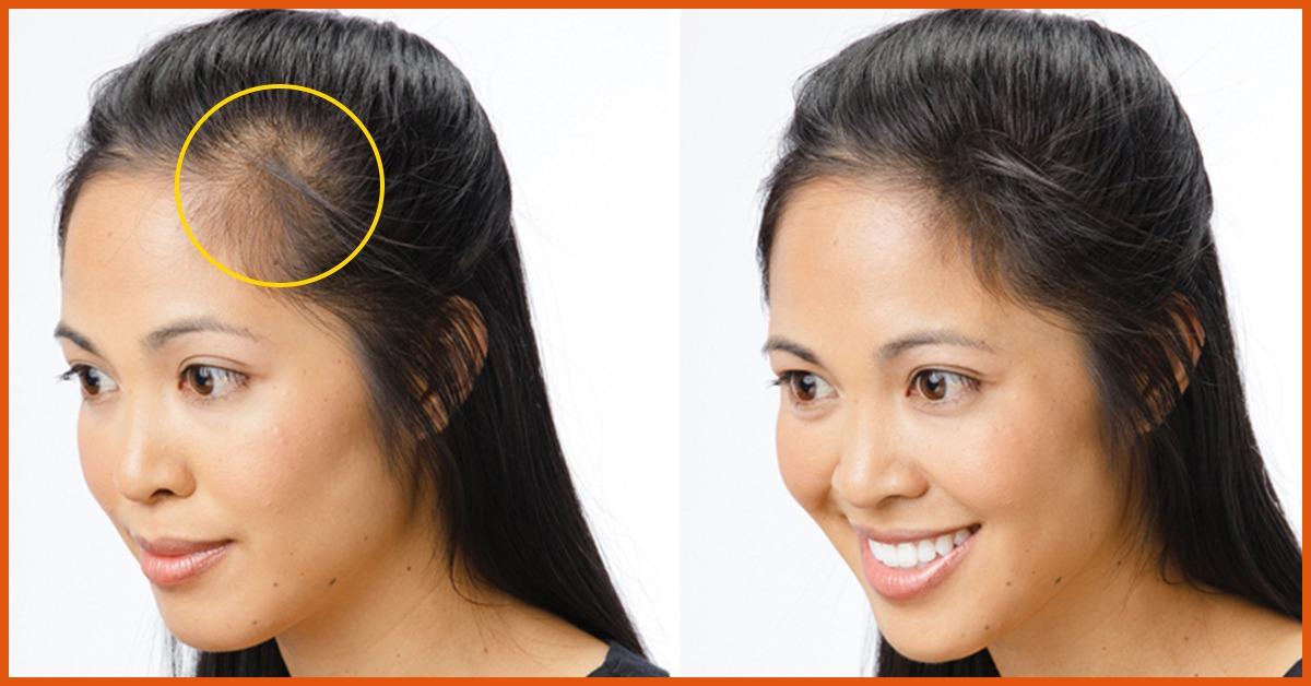 Как убрать волосы на лбу