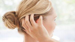 здоровая кожа головы после применения масла эвкалипта