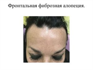 Фронтальная фиброзная алопеция выглядит как прямая узкая полоса выпадения волос прямо на передней части головы