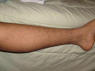 Лечение выпадения волос на ногах
