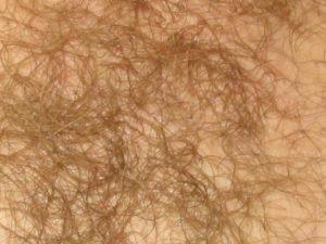 Лобковые волосы