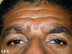 Местное выпадение волос на брови
