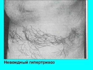 Невоидный гипертрихоз