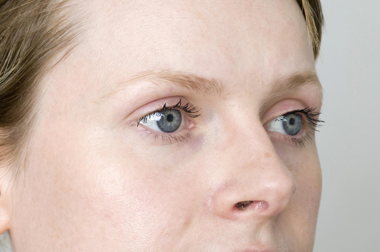 Почему выпадают брови
