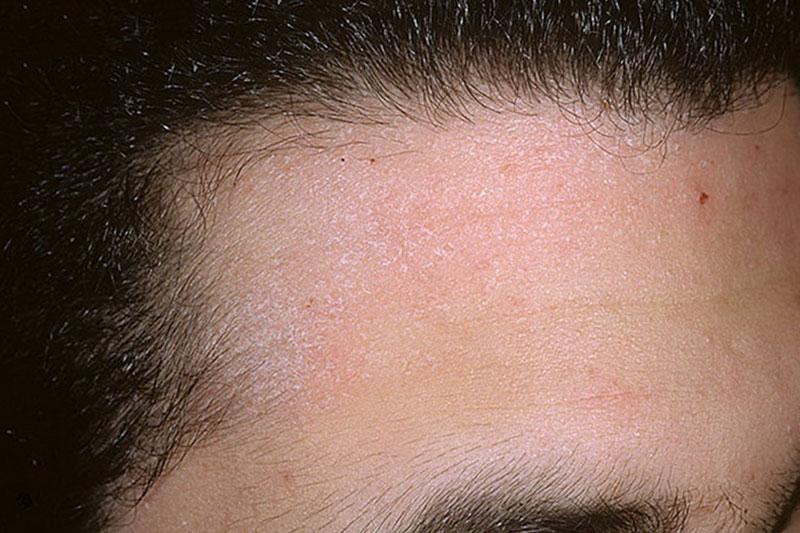 Псориаз кожи головы