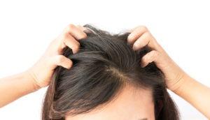 снизить чувствительность кожи головы