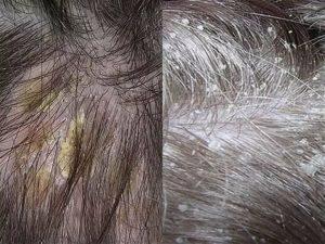 волосы со склонностью к шелушению