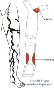 Заболевания периферических артерий- одна из частых причин выпадения волос на ногах