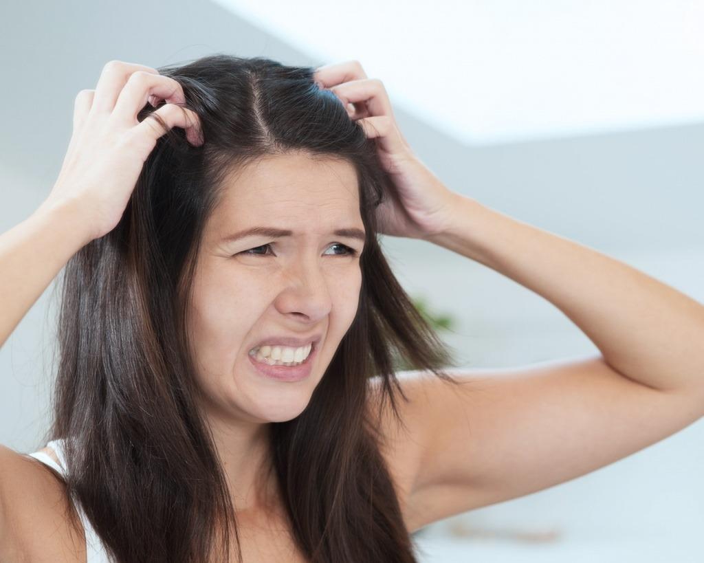 Средства от зуда кожи головы