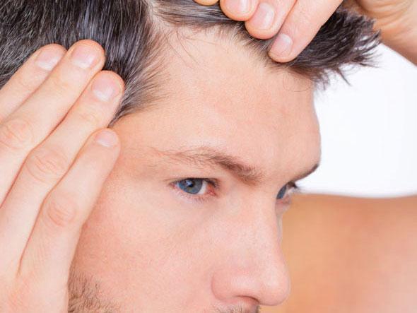 Перхоть на голове у мужчин почему появляется и что делать