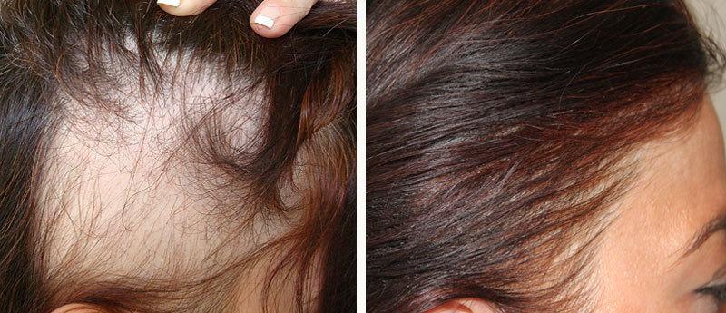 После операции сильно выпадают волосы