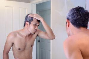 Седые волосы в 30 лет у мужчин