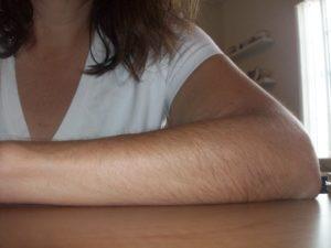 Волосатые руки у девушки фото