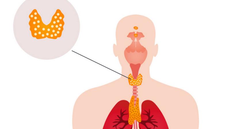 Заболевание щитовидной железы и выпадение волос