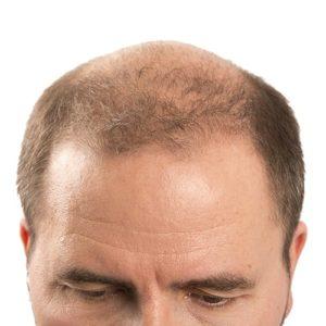Лечение андрогенной алопеции у мужчин