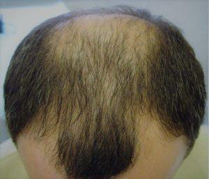 Врожденная слабость волос