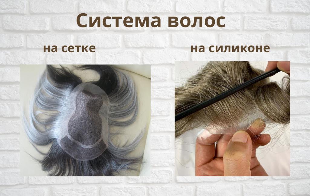 Безоперационная пересадка волос - утолщение волос сетчатым методом