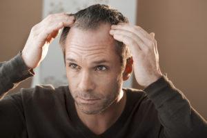 густота волос у мужчин
