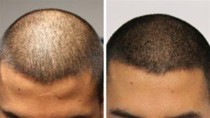 Как работает пигментация волос на голове
