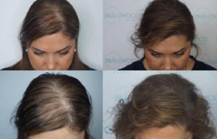 Как скрыть потерю волос