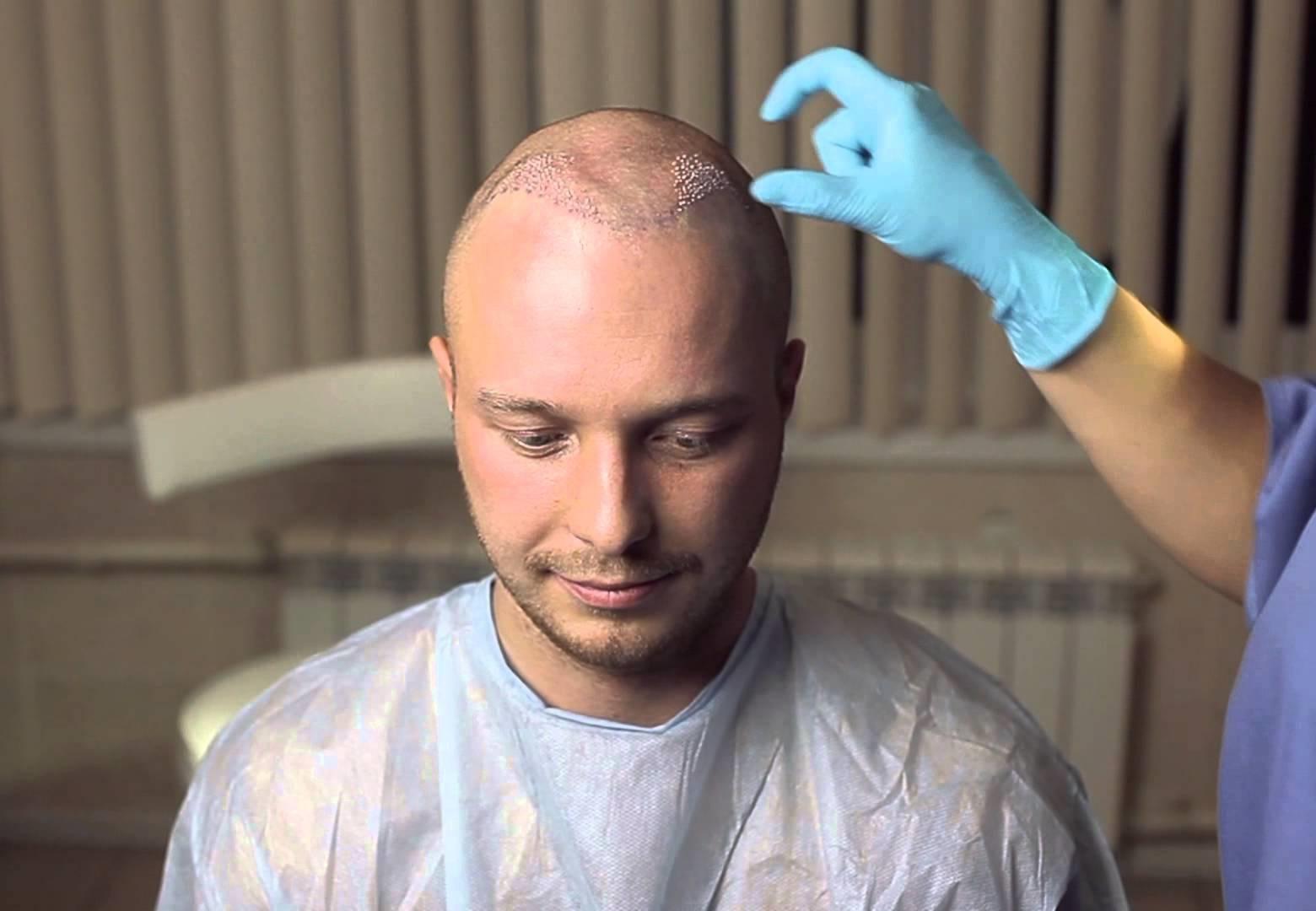 Кому подходит пересадка волос