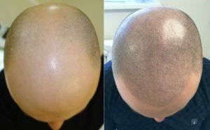 Микропигментация кожи головы