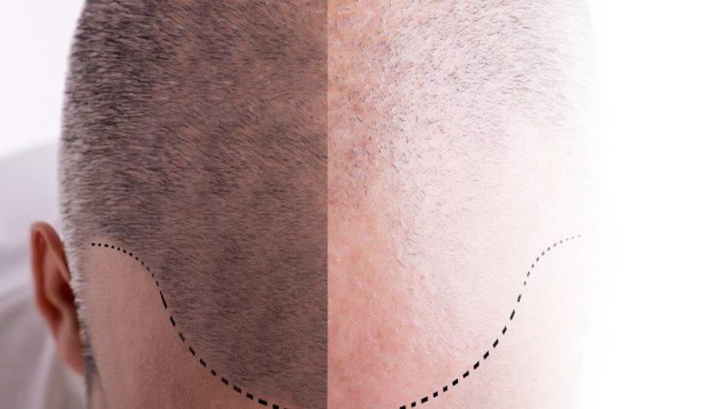 Пересадка волос FUE