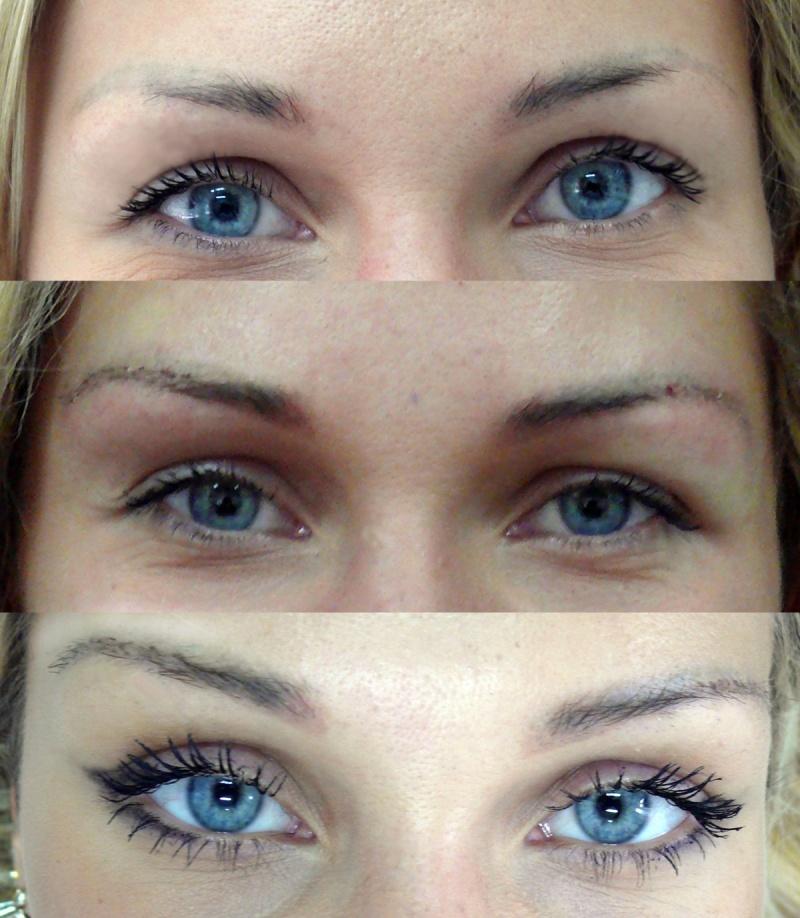 Пересадка бровей фото до и после
