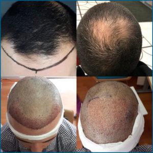 пересадки волос