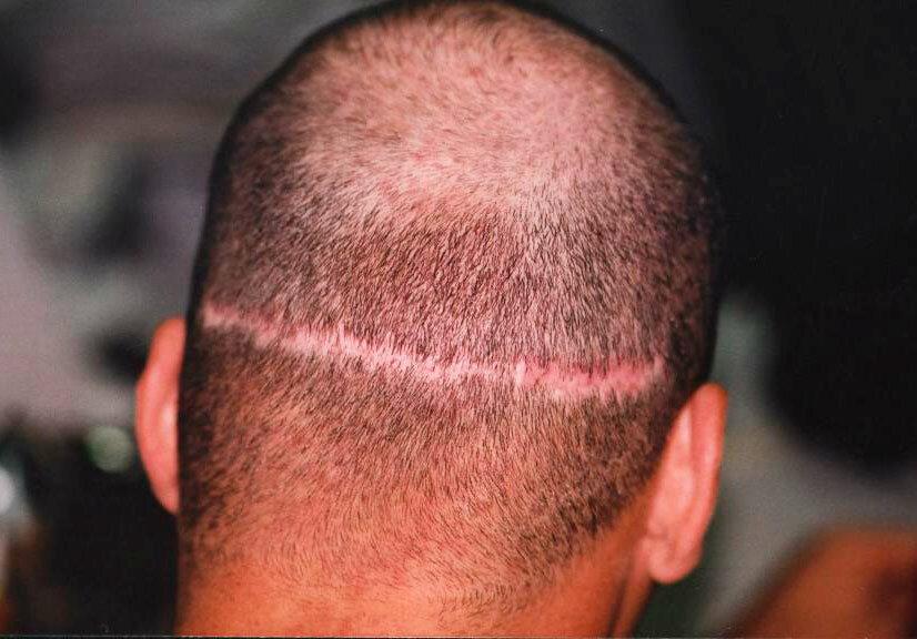 Пересадка волосы на шрамы