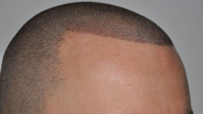Пигментация волос на голове