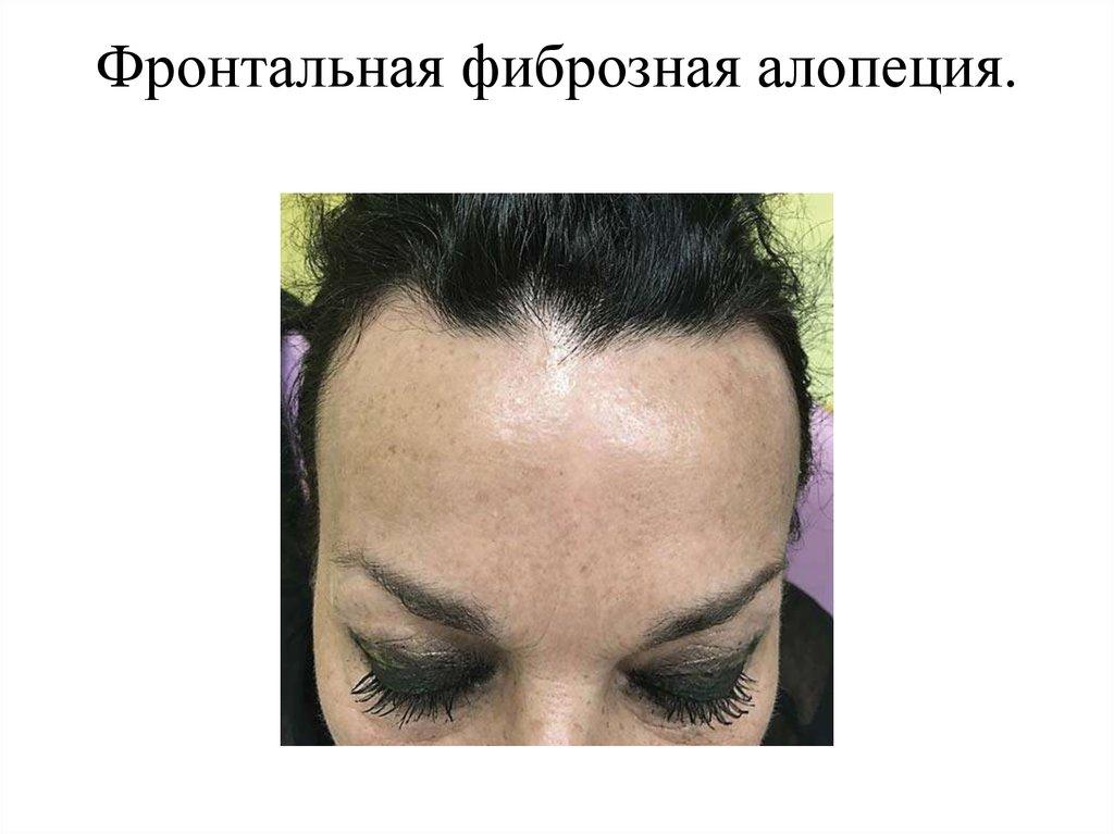 Причины фронтальной фиброзной алопеции