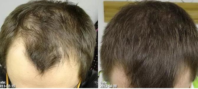 RU58841 волосы