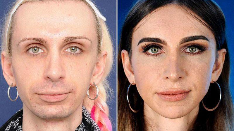 Операция по пересадке волос трансгендерам