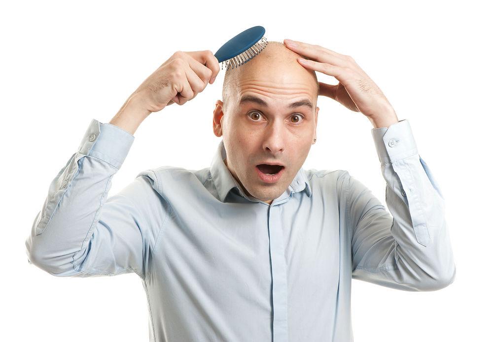 Начали выпадать волосы у мужчин