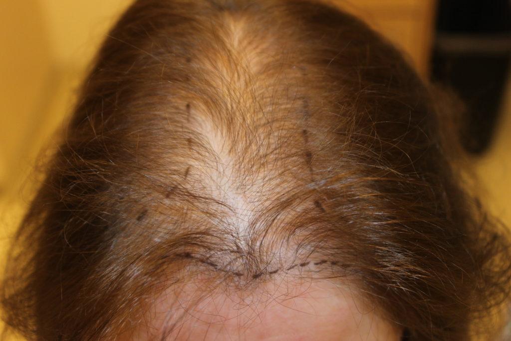 выпадение волос и вич